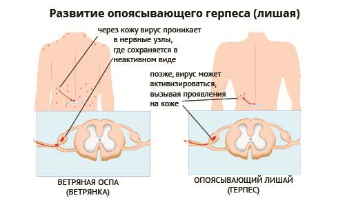 Постгерпетическая невралгия