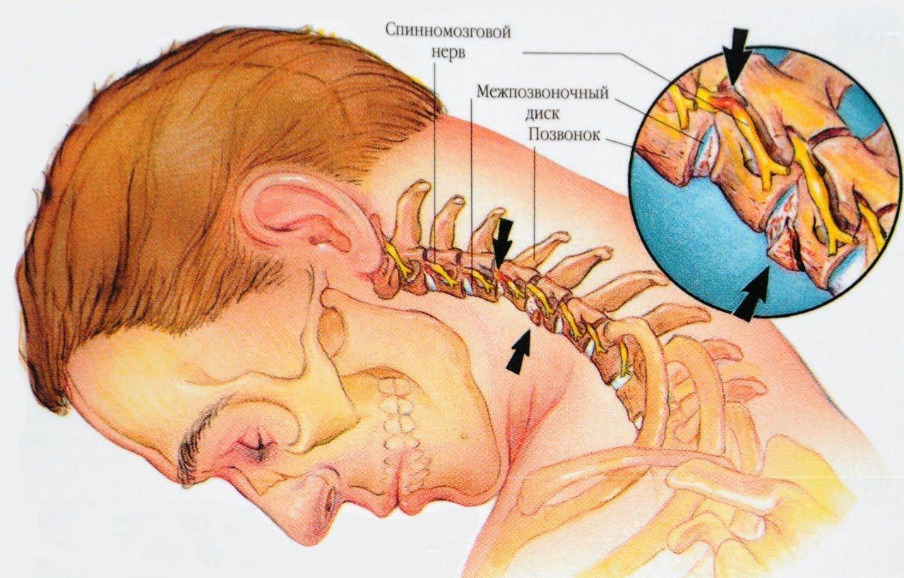Дегенеративные изменения в позвоночнике при хондрозе