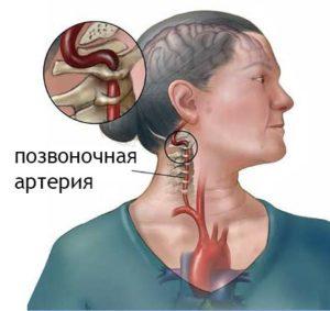 Пережатие межпозвоночной артерии при шейном остеохондрозе