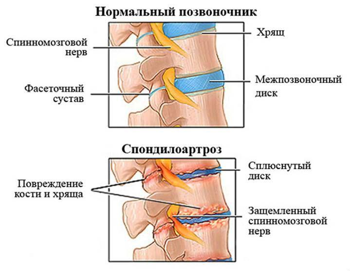 Спондилоартроз и остеохондроз лечения -