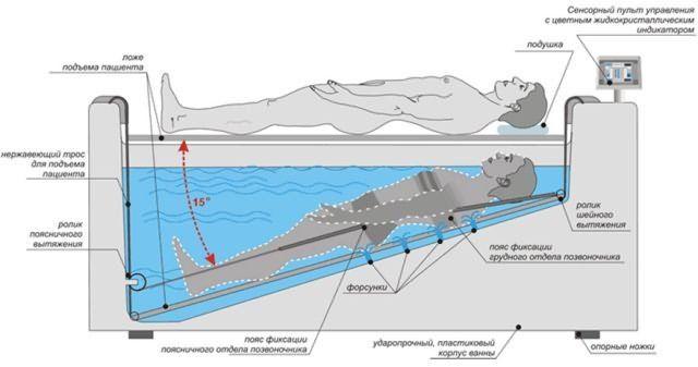 Алгоритм вытяжения позвоночника под водой