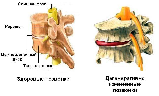 Лечение дегенеративных изменений суставов позвоночника опухолевидное образование на суставе пальца