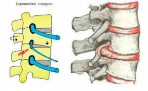 Остеохондроз грудного отдела позвоночника с корешковым синдромом