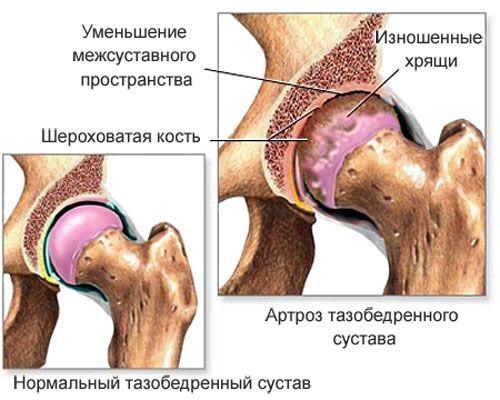 Можно ли вылечить остеохондроз тазобедренного сустава хруст в суставах что это такое и как лечить