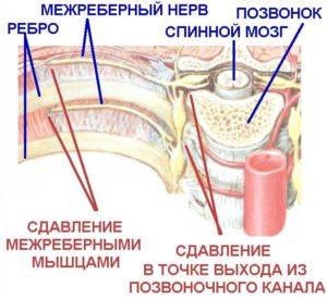 Защемление межреберного нерва
