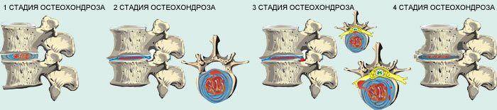 Степени остеохондроза