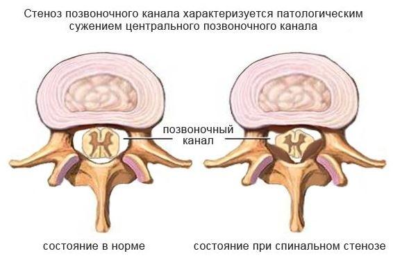 Стеноз шейного отдела позвоночника