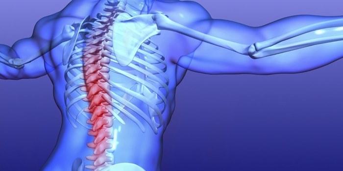 Распространенный остеохондроз позвоночника лечение